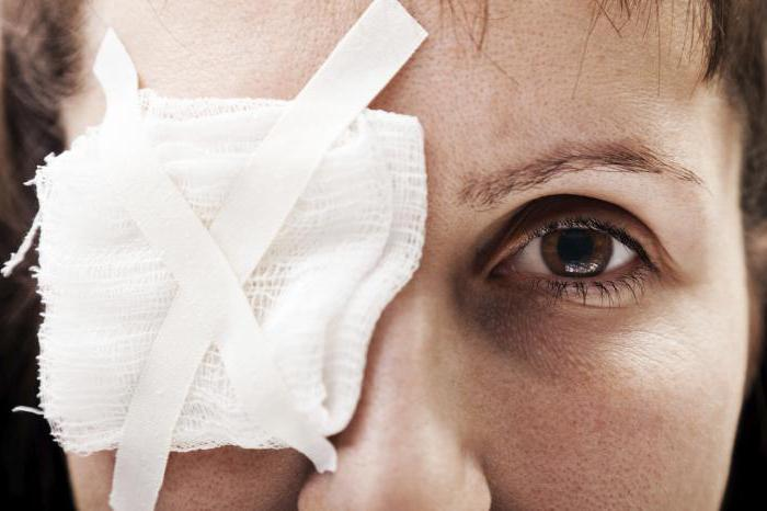 причинение тяжкого вреда здоровью по неосторожности примеры
