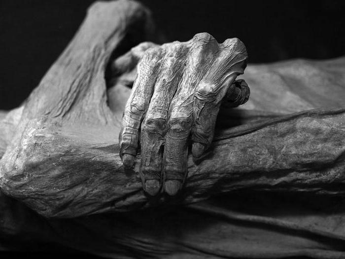 Признаки биологической смерти ранние и поздние: снижение температуры тела, симптом Белоглазова (кошачий глаз), трупные пятна