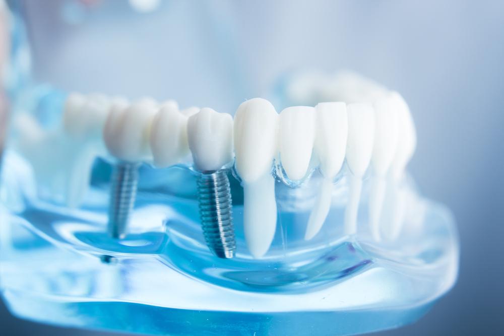 право на льготное протезирование зубов ветеранам труда
