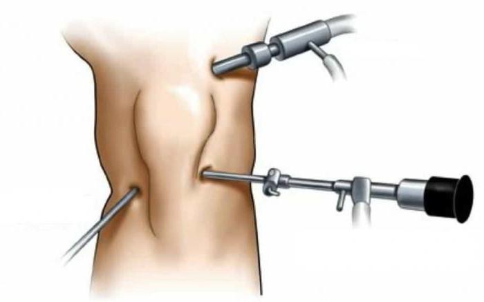 замена мениска коленного сустава